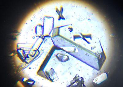 Harnkristalle im Urin - Laboruntersuchung